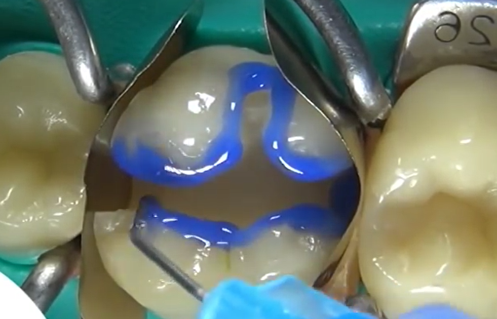 Частичное восстановление зуба