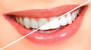виниры на зубы сочи